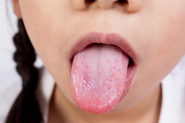 口臭を防ぐための舌磨き 鏡で自分の口の中を見たときに、舌の表面に白い苔のような付着しているものをけたことがある人も多いことでしょう。この苔のようにこびりついている汚れのことを舌苔と呼んでいます。 この正体は舌の表面に無数にある小さな突起が固くなって、その間に細菌や口腔内の粘膜、食べ物のかすなどの汚れがたまったものです。