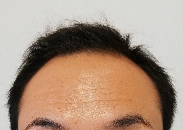 育毛に良い食べ物、悪い食べ物は? 口から摂取した食べ物に含まれている栄養素が元になり髪の毛が育毛されるため、健やかな髪の毛を生み出しつつ育てていき薄毛を解消させるには、育毛に良い食べ物の摂取量を増やすべく大豆食品を献立に加えるようにしましょう。