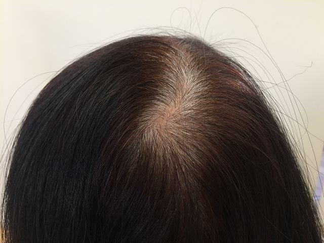 分け目が薄くなった?女性の薄毛対策は? 薄毛というとAGA(男性型脱毛症)を思い浮かべやすいですが、女性の悩みでもあります。髪をセットしている時に分け目が薄くなったというとき、何が原因なのかを突き止めることが効果的な対策に繋がります。