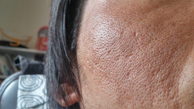 ニキビの後のクレーターのケア方法は? ニキビがやっと治ったと思ったら、ニキビ跡がクレーターになってしまったという人は多いものです。 クレーターになってしまう凸凹が目立つため非常に困ります。 メイクでもすべてが隠せるわけではなく、どうすればよいのか悩んでいる人は多いものです。 クレーターのケア方法としては、一番は皮膚科に行って相談するのがよいと言えます。