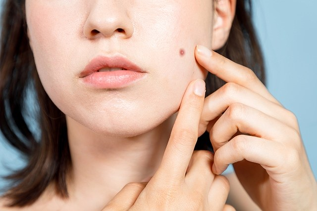 ニキビの後の赤みを消す方法は? 何かと気になるニキビ跡の赤みは、実はいくつかの方法で消すことができます。 そもそもニキビは、常在菌のアクネ菌に対する過剰な反応により炎症が起こり、結果として跡が残ります。 また、炎症が引いても残骸が残ることで、肌の赤みが残り続けることになります。